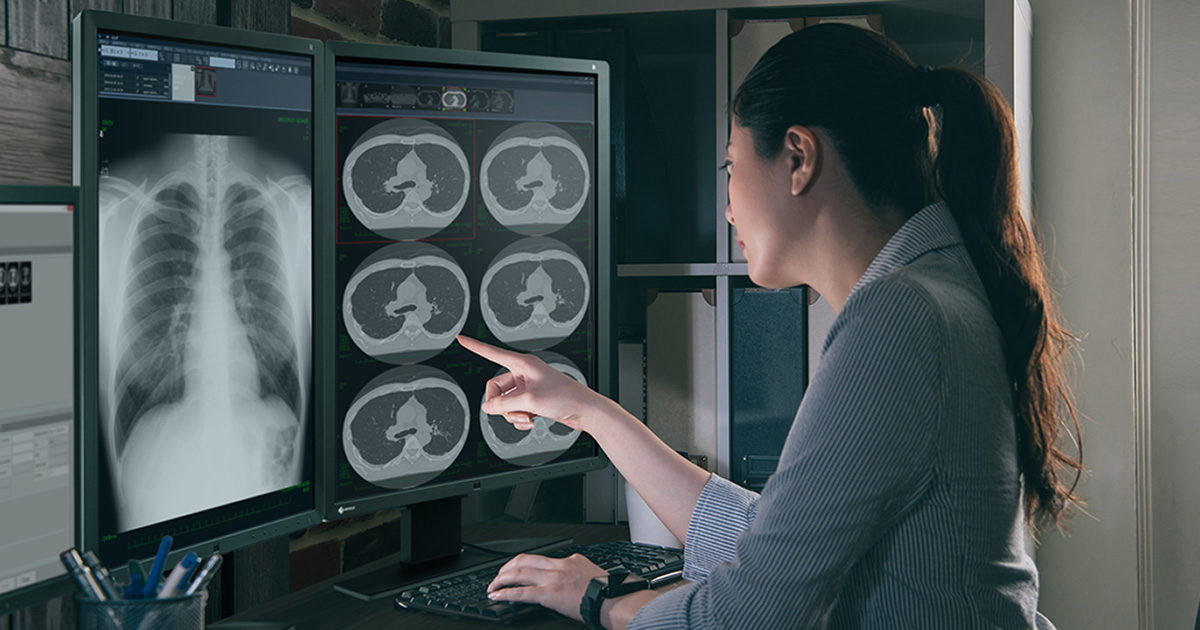 transitioning to teleradiology Vesta teleradiology releases a white paper to educate healthcare providers as they transition their billing systems from icd-9 to icd-10 the white paper also provides information to providers who are not quite ready for the transition.